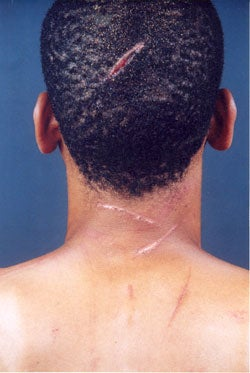 This man was beaten with sticks and cut with machetes by assailants who perceived that he was gay. Violent attacks against gay men are common in Jamaica. Photo: Jamaica Forum for Lesbians, All-Sexuals, and Gays