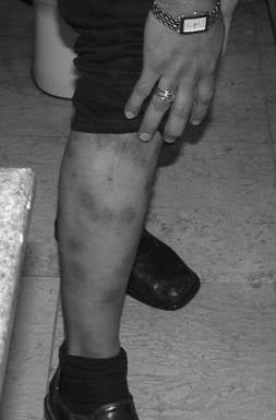 Gamal's leg, showing scars of torture inflicted by a Damanhour Prison guard.