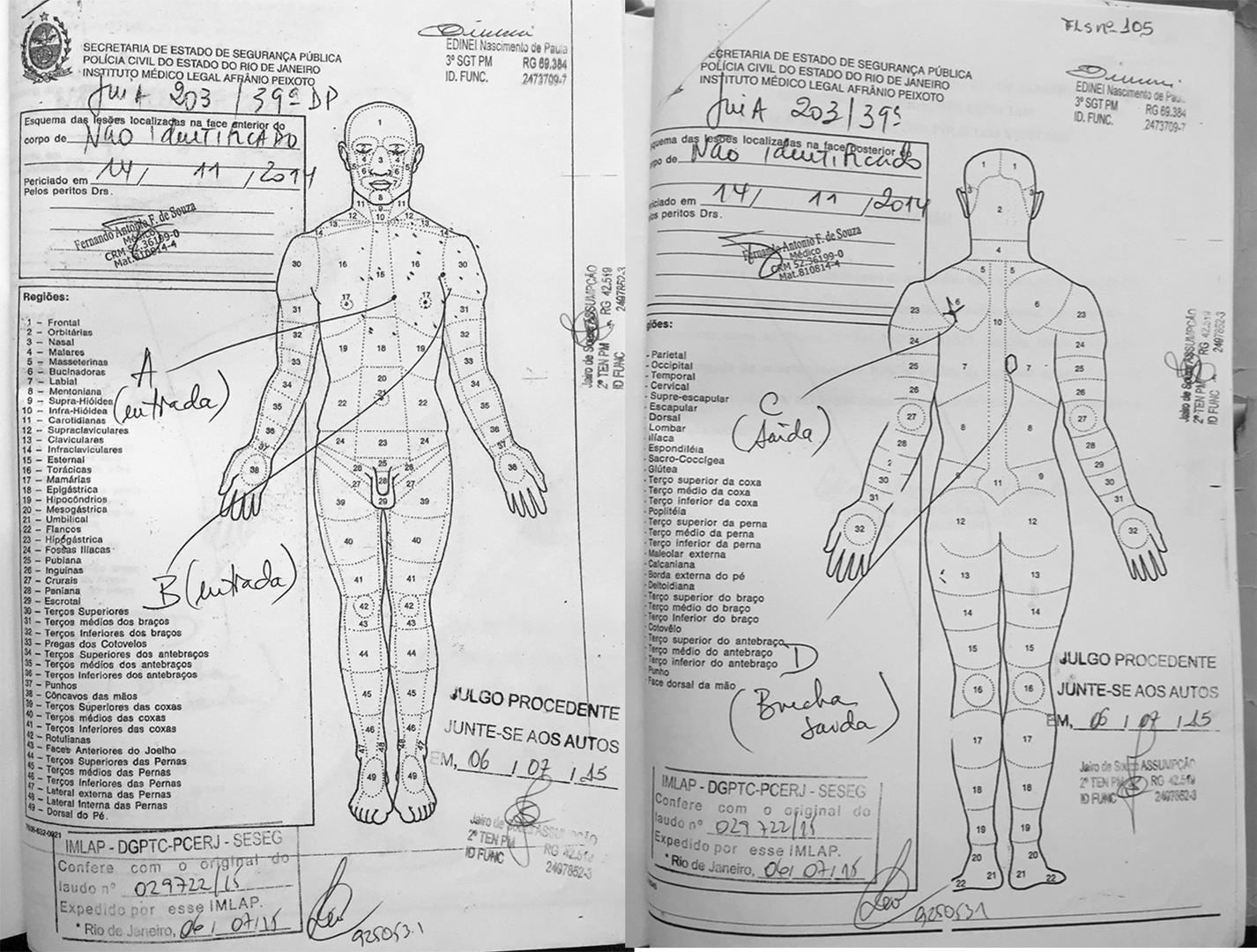 """Os diagramas da autópsia de Charles Alves Duarte mostram duas feridas de entrada de bala: no centro do peito (marcada por """"A"""") e no lado esquerdo do peito (marcada por """"B"""") com orlas de tatuagem, indicando que os tiros foram disparados à queima roupa. O f"""
