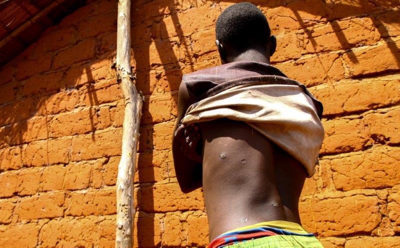Un garçon de 15 ans, qui a survécu à une attaque de janvier 2017 menée par l'Union pour la Paix en Centrafrique (UPC) contre son village, Mourouba, en République centrafricaine. Ce jour-là, des combattants peuls de l'UPC ont tué son père et deux de ses fr
