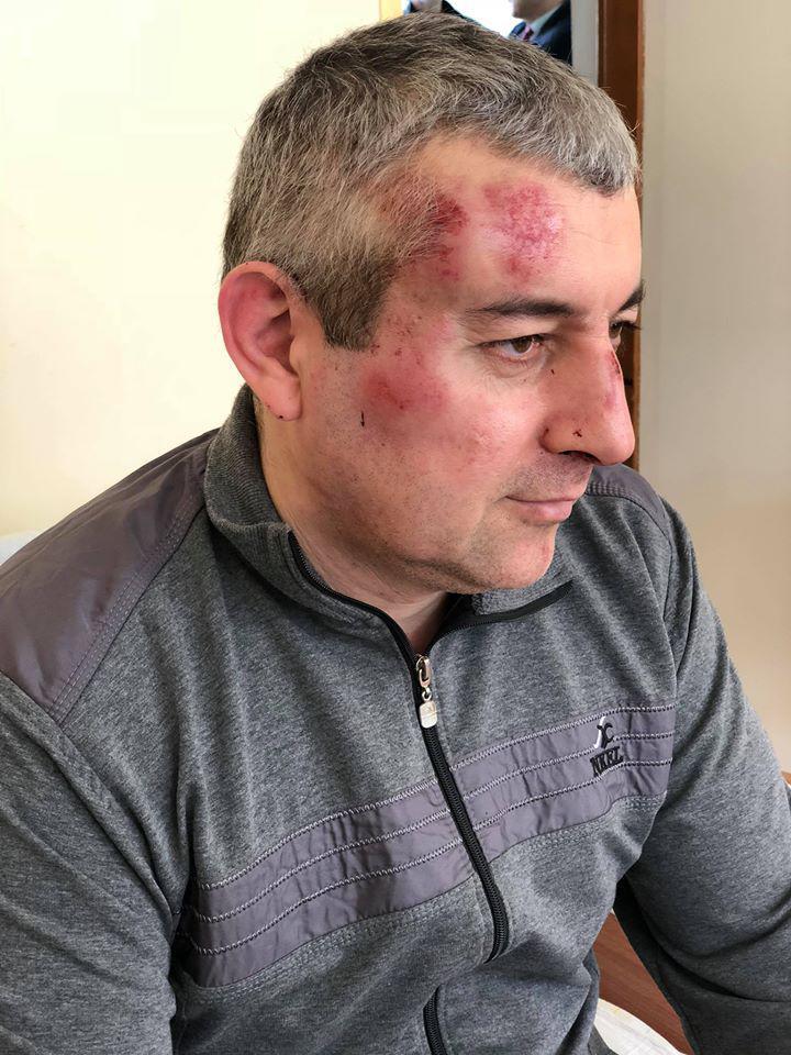 Сиражутдин Дациев после нападения, 28 марта 2018 г.