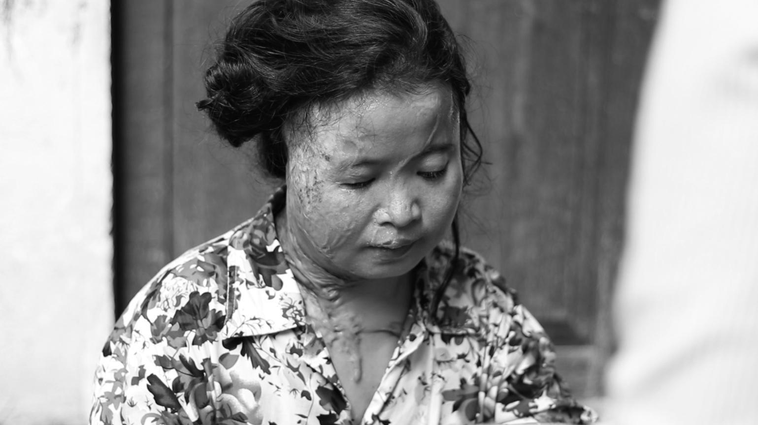Moung Sreymom, victime d'une attaque à l'acide perpétrée le 19 novembre 2014, photographiée trois ans plus tard à Phnom Penh, au Cambodge.
