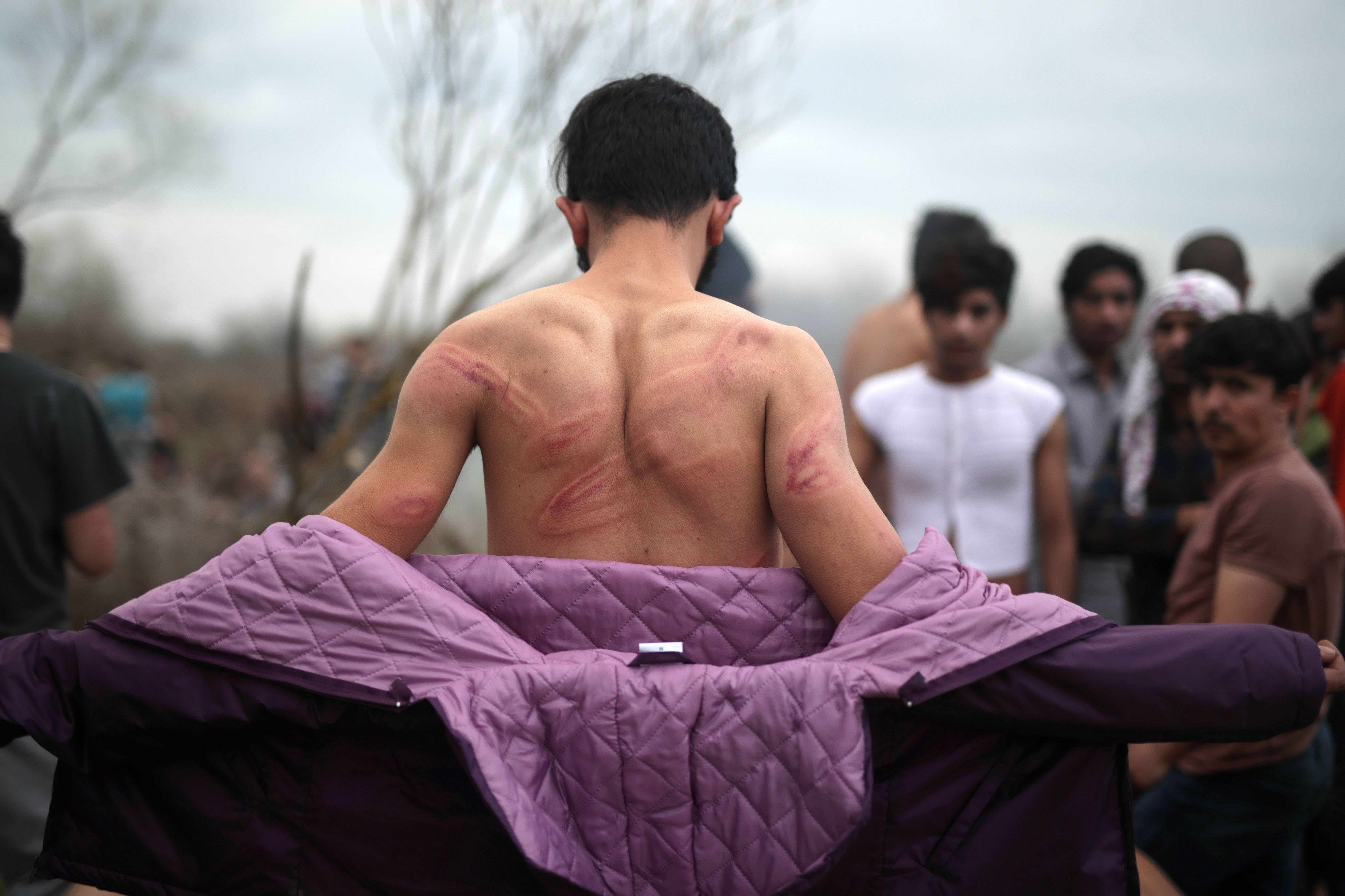 An asylum seeker in northern Turkey at the Greek border on March 6 shows injuries he says Greek security forces inflicted after he had crossed the Evros River into Greece. Photo by Turkish Radio and Television Corporation/Handout/Anadolu Agency.