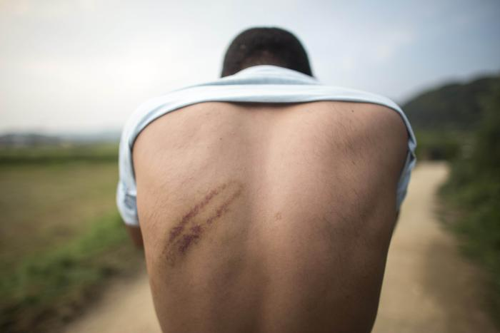 A refugee in Bosnia and Herzegovina shows injuries he says were the result of a beating by Croatian police August 2018.