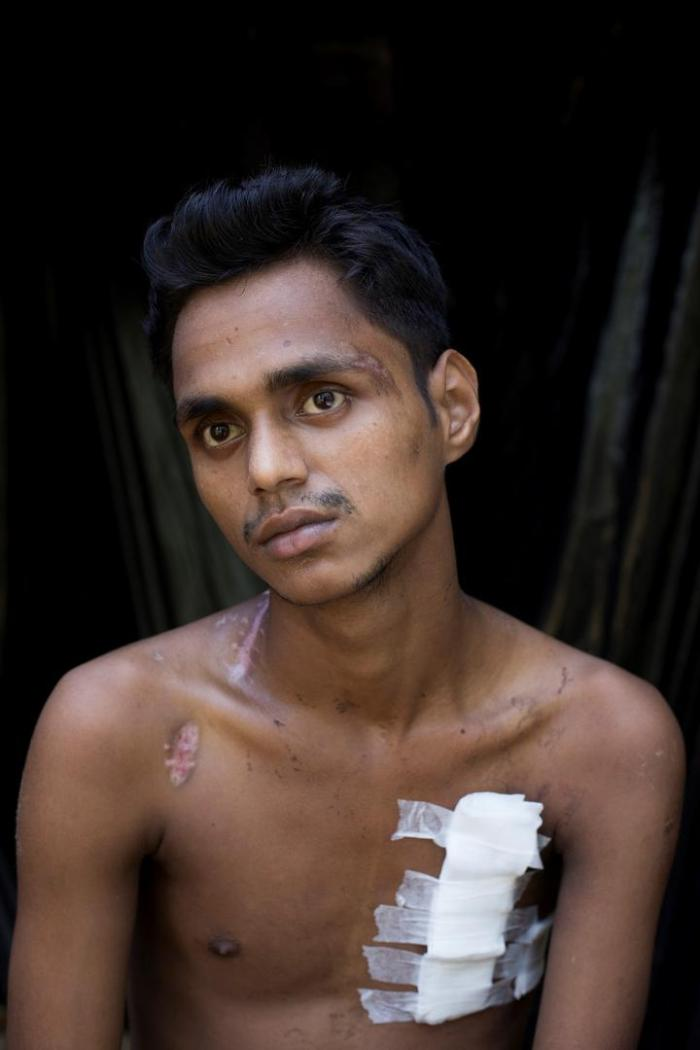 Muhamedul Hassan, an 18-year-old Rohingya man who was shot multiple times by Burmese soldiers.
