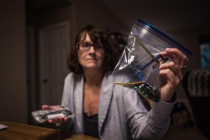 Maria Higginbotham, 57, holding screws and bolts removed from her back in a recent surgery.