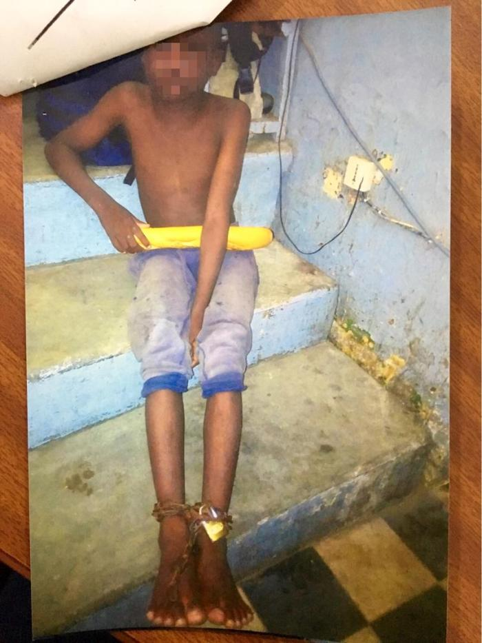 This 8-year-old talibé child ran away from his daara in Saint-Louis, Senegal with chains still attached to his feet in August 2017. Original photo taken August 2017. Published with permission from the High Court of Saint-Louis, Senegal.
